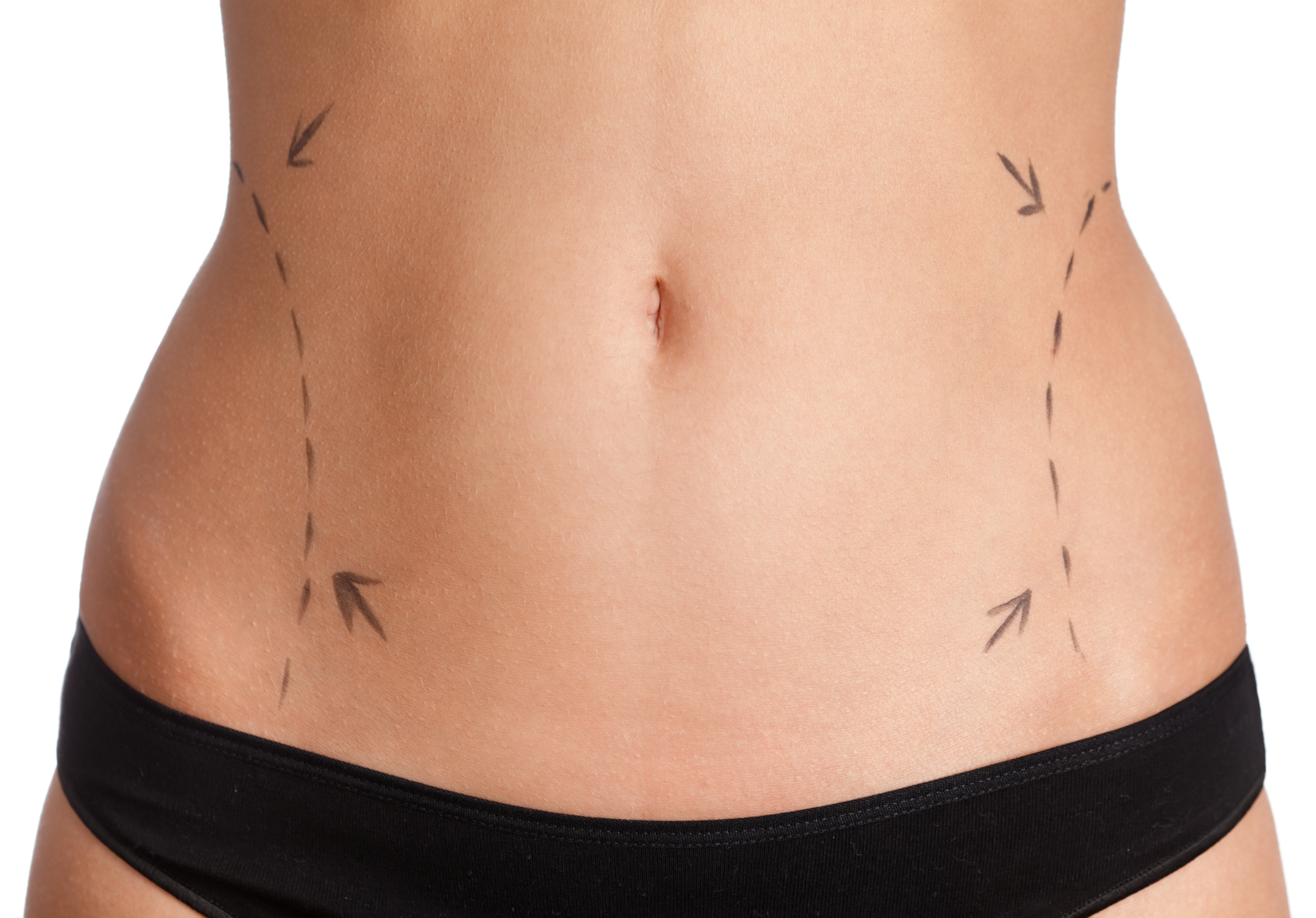 Liposuction For A Better Body