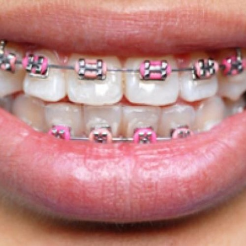 How To Deal With Your Child's Worries About Braces