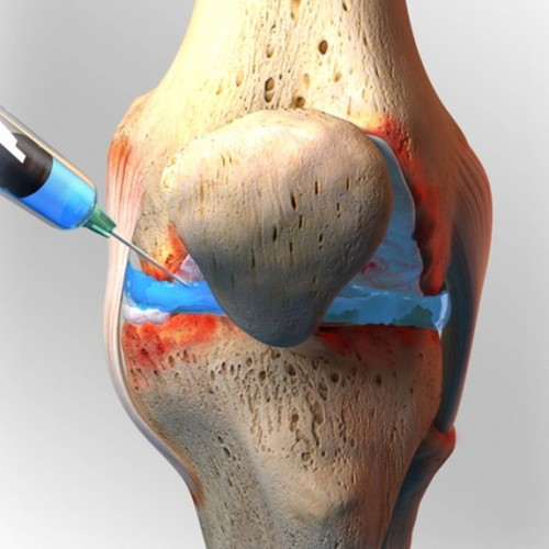 Knee Pain Know How