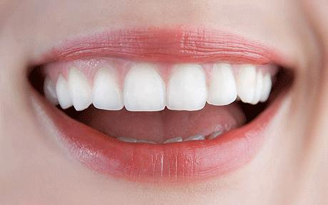 Zoom Whitening – A Reliable Solution In Permanent Teeth Whitening