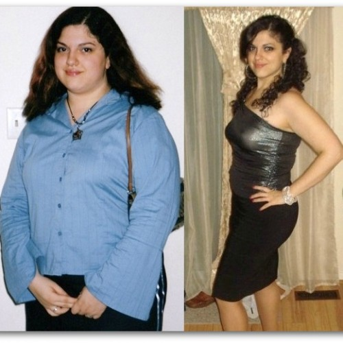 Knowing The Benefits Of Gastric Sleeve Surgery For Weight Loss
