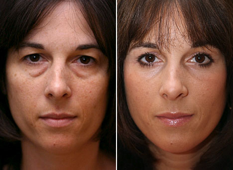 Eyelid Surgeon Can Perform Amazing Things To Your Face