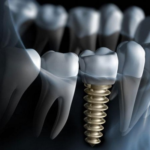 Different Types Of Dental Implants and Their Benefits