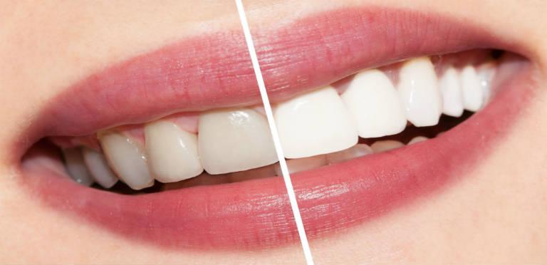 The Need Of Whitening Your Teeth by An Expert Dentist