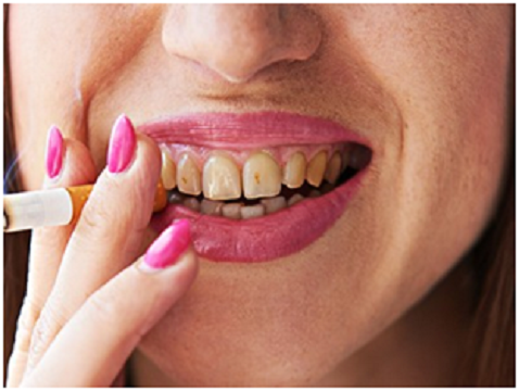 Habits You Should Quit For Healthy Teeth