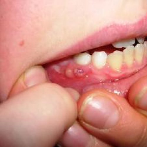 Bleeding Gums- Reason Why They Are Caused