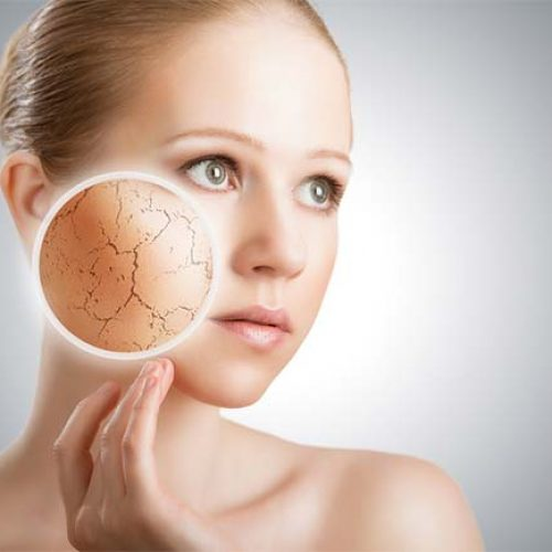 Top 10 Signs Of Dry Skin and How To Cure Them