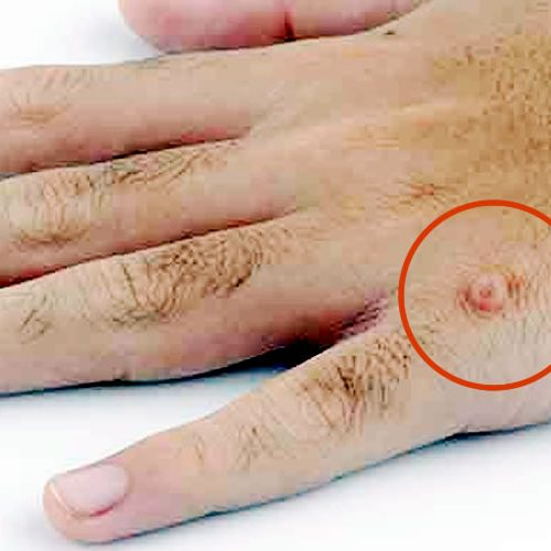 How To Treat Warts?