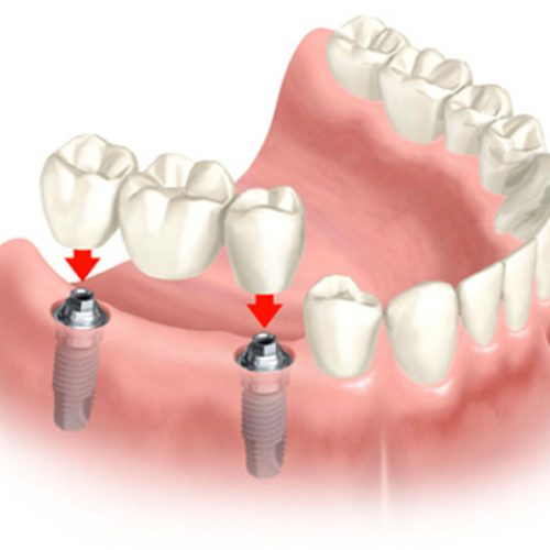 Difference Between Dental Implants And Dentures