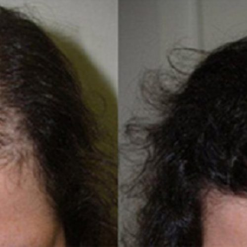 Why It Makes Sense To Choose Turkey For Your Hair Transplant
