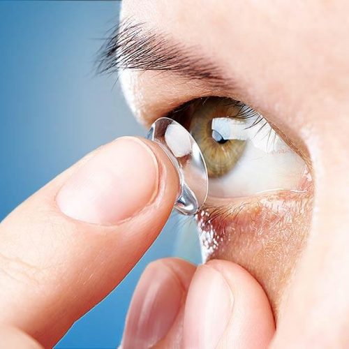 Can Contact Lenses Damage Your Eyes?