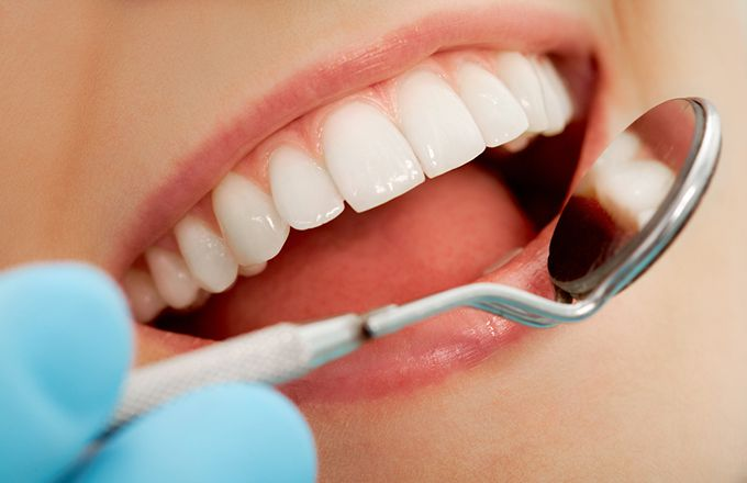 Why Dental Insurance Is Essential For Everyone