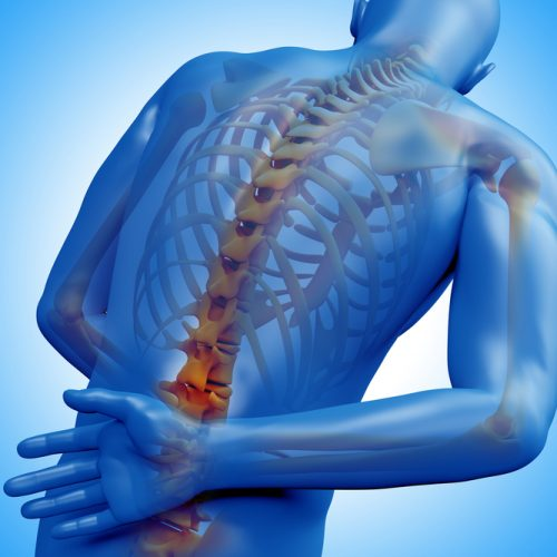 Simple Health Plans That Can Benefit Spondylitis Patients
