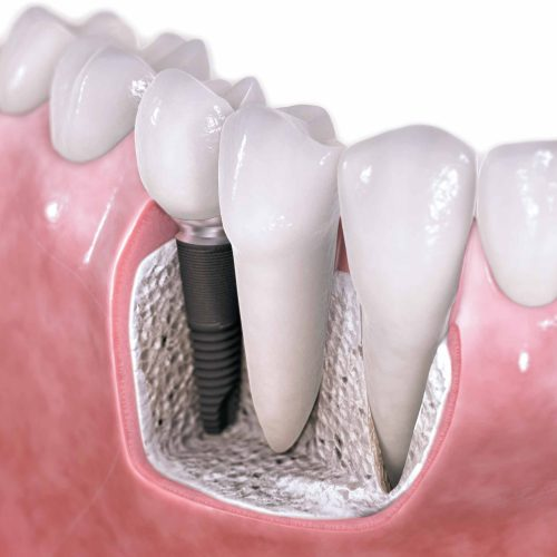 Learn Some Benefits Of Dental Implants