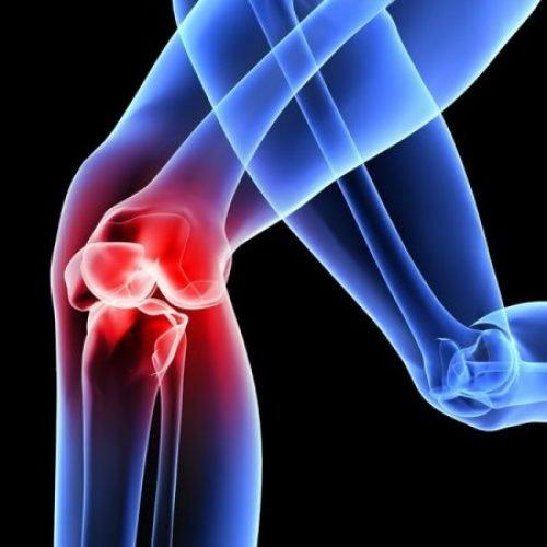 What Are Bone And Joint Infections?