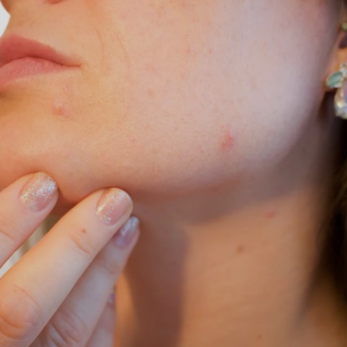 What Is Your Skin Trying to Tell You When Your Face Breaks Out With Acne?