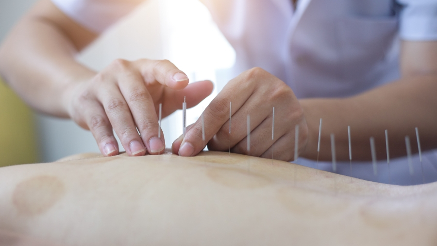Top 5 Questions About Acupuncture To Ask Your Doctor