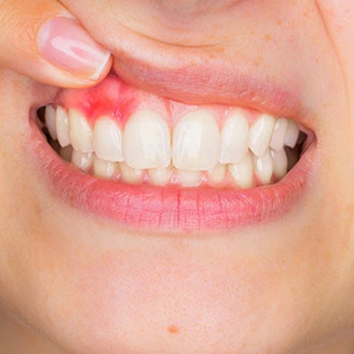 5 Easy Ways To Improve Gum Health