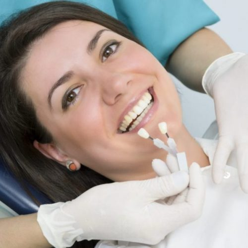 4 Things You Need to Know About Temporary Dental Crowns