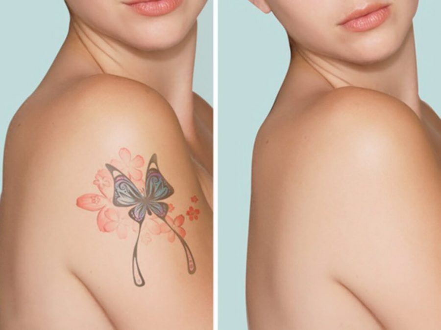 What You Need To Know Before Going For Tattoo Removal