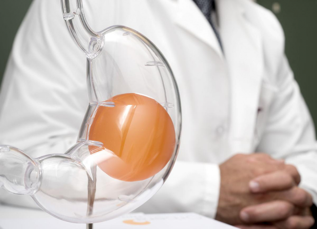 The Good Side Of Gastric Balloon Surgery