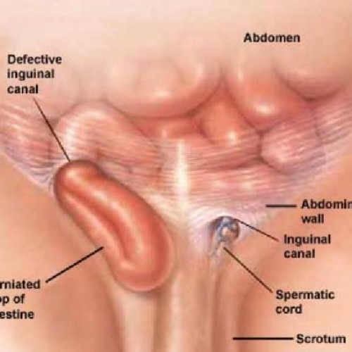 Hernia Treatment In Homeopathy