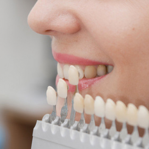 Can A Dentist Fix Crooked Teeth?