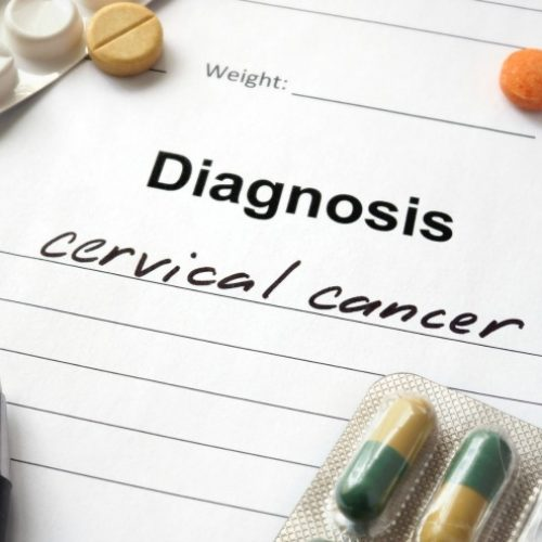 Diagnoses Of Cervical Cancer