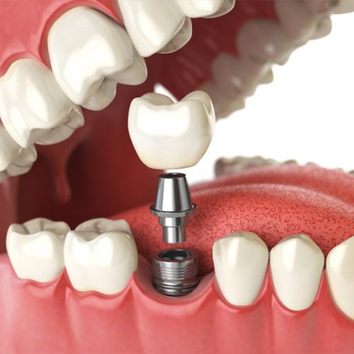 Why Might You Need Dental Implants?