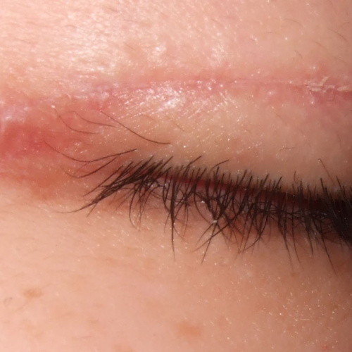 Are Scars Normal After Undergoing An Eyelid Surgery?
