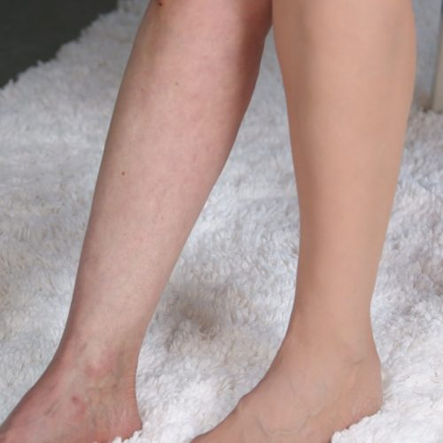 Why Do I Have Spider Veins?