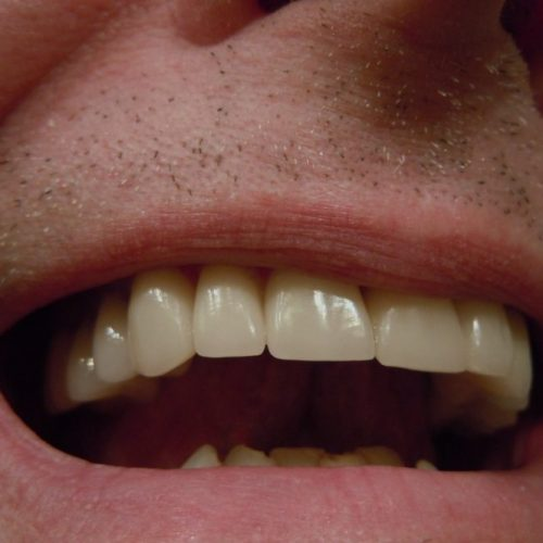 How To Care For Dental Crowns With The Right Diet