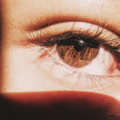 5 Issues You Didn't Realize Were Causes Of Dry Eye