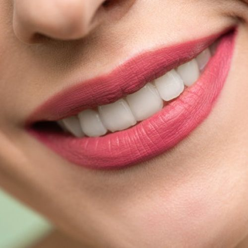 4 Important Steps to Take When You Think You've Chipped A Tooth