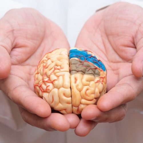 What Is Alzheimer's Disease?: A Straightforward Guide To The Causes, Symptoms, And Treatments